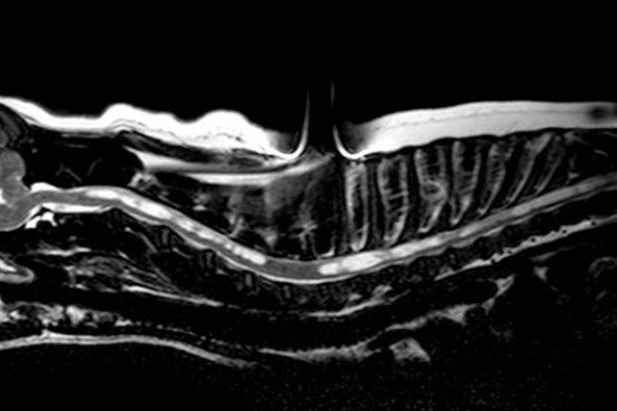 MRI of cervical and thoracic spine illustrating syrinx in the spinal cord