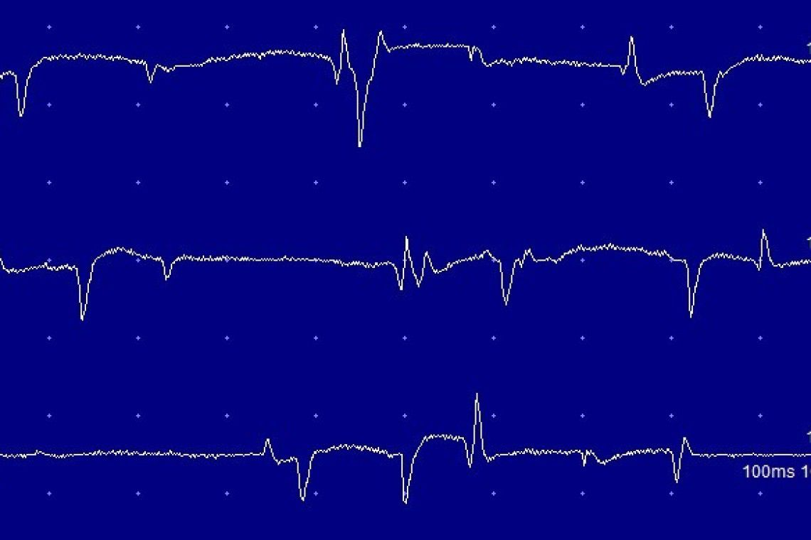 EMG recording from a muscle. The spontaneous activity indicates a neuropathy or myopathy