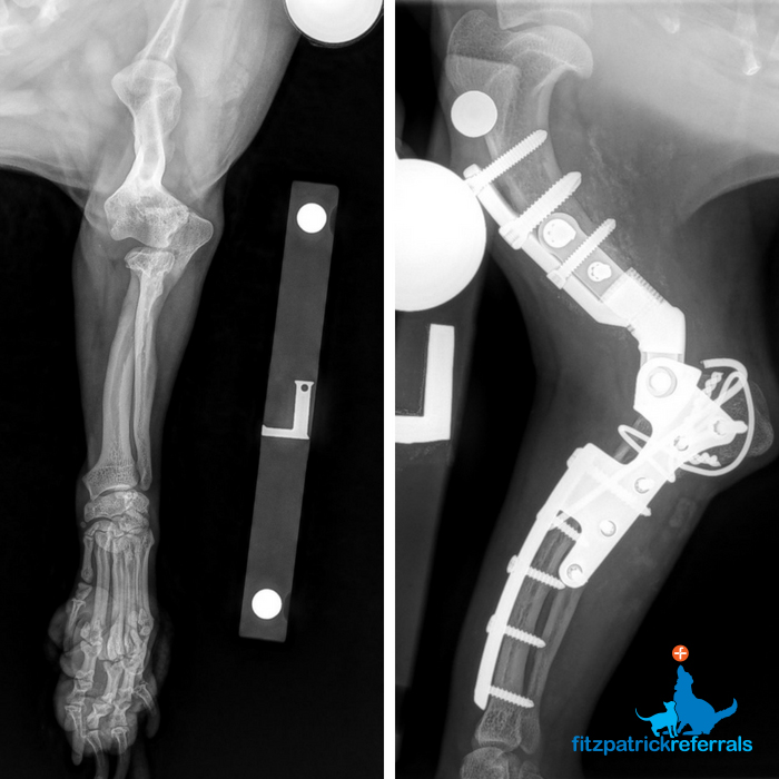 Patient's preoperative crandio-caudal radiograph & post-operative medio-lateral radiograph of his custom TER by Fitzpatrick Referrals