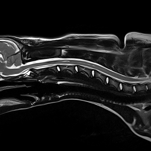 MRI scan of a 6-month-old puppy's spine 5 weeks post-surgery for hydrocephalus at Fitzpatrick Referrals showing the syringomyelia (fluid-filled cavities) have mostly resolved