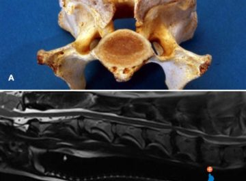 Post-mortem sample of a vertebra and an MRI scan of intervertebral disc protrusions
