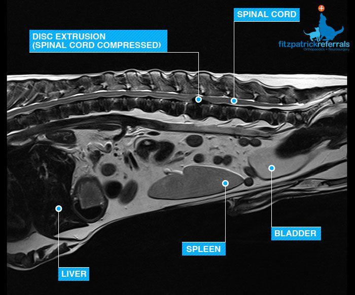 Spinal Disc L3-L4 - Fitzpatrick Referrals